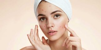 7 Effective Ayurvedic treatment tips to get rid of Pimples
